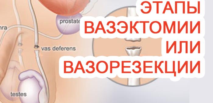 Этапы вазэктомии / вазорезекции