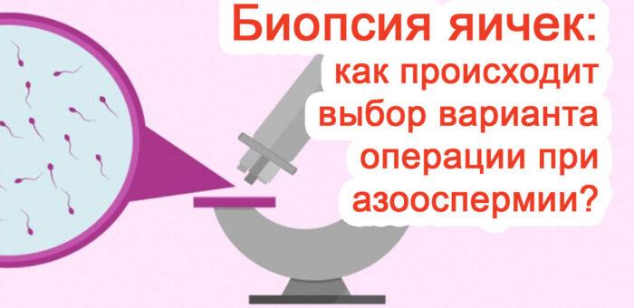 Выбор варианта биопсии яичек при азооспермии