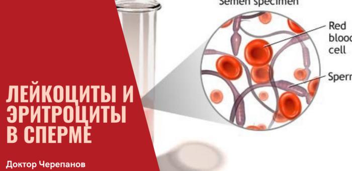 Примесь Лейкоцитов и Эритроцитов в сперме